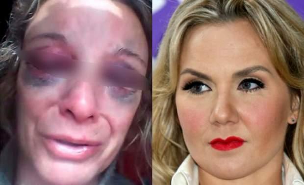 Michelle Vieth declara en el Reclusorio Femenil Sur con fuertes golpes en el rostro