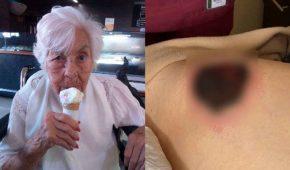 Laura Zapata asegura que su abuela de 103 años ha sido maltratada en asilo