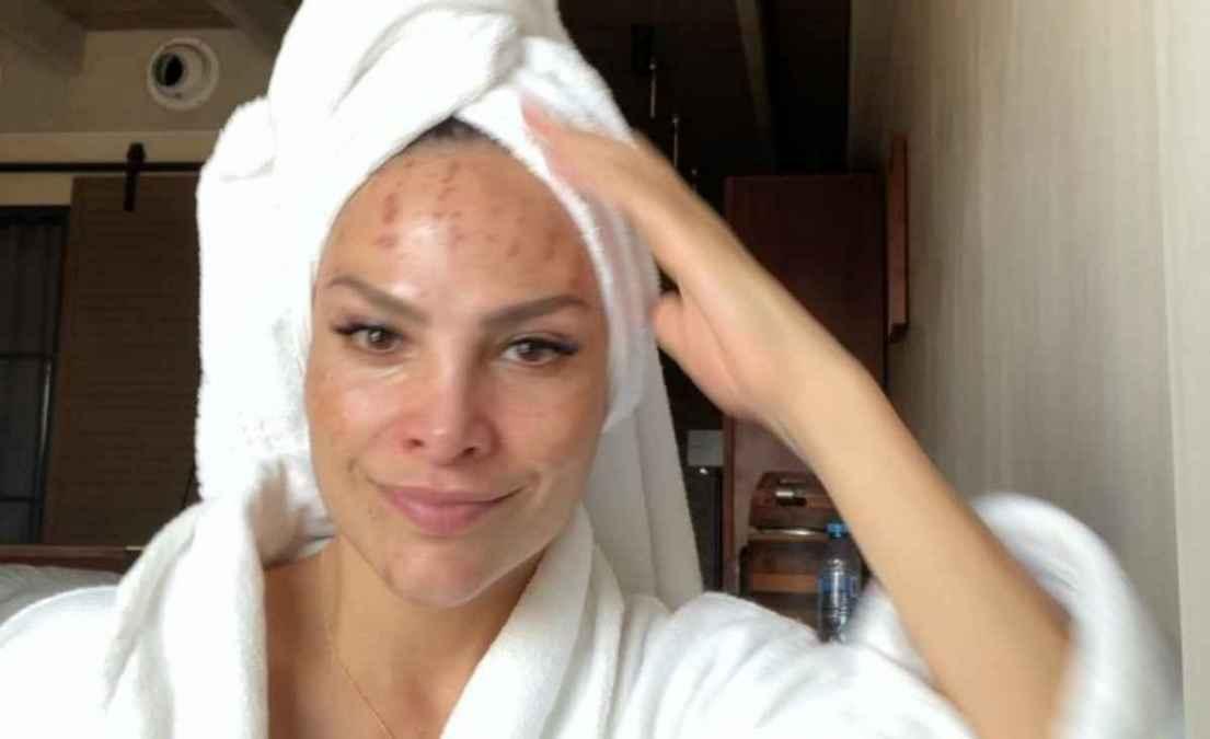 Fabiola Campoanes muestra lesiones en su rostro por tratamiento estético